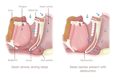 Upper-Airway-Resistance-Syndrome